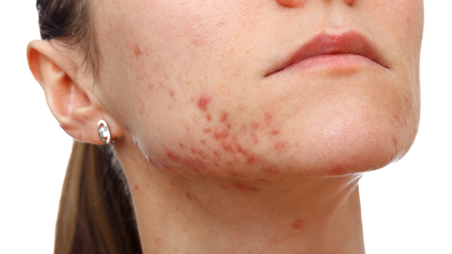laser acne treatment melbourne