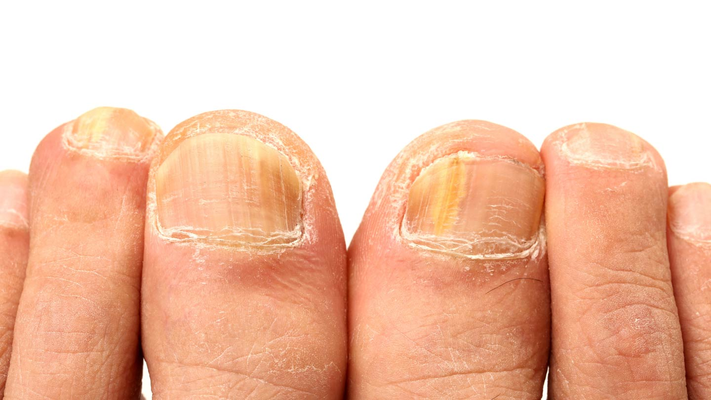 Toenail Laser Treatment melbourne