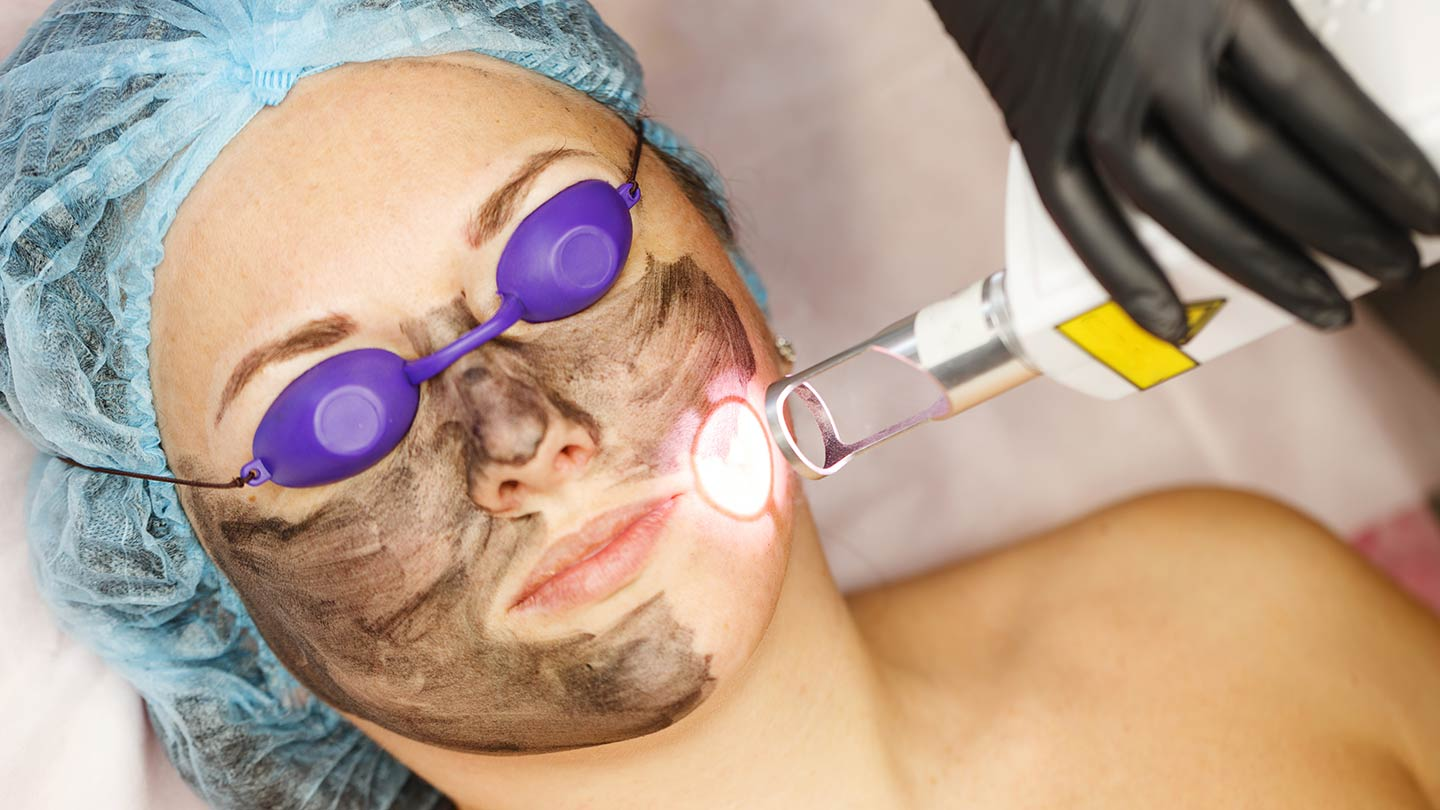 carbon laser peel treatment china doll facial
